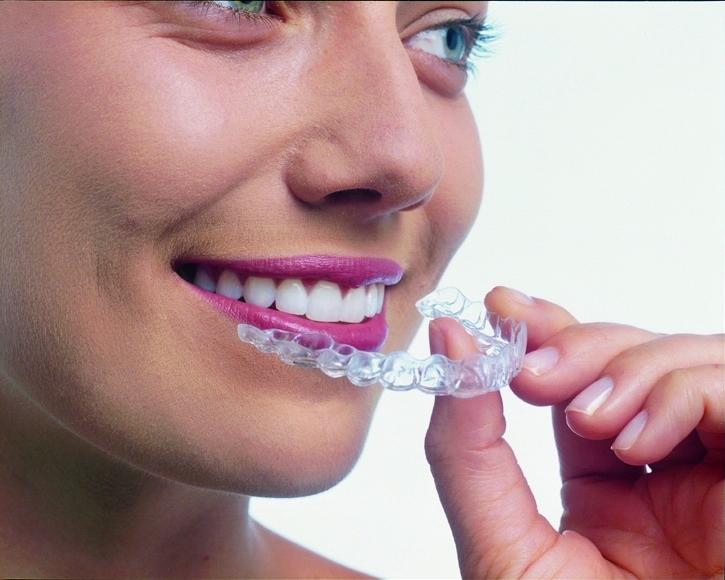 マウスピース歯科矯正インビザライン1