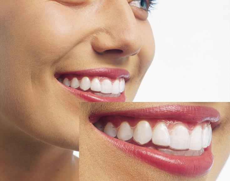 マウスピース歯科矯正インビザライン3