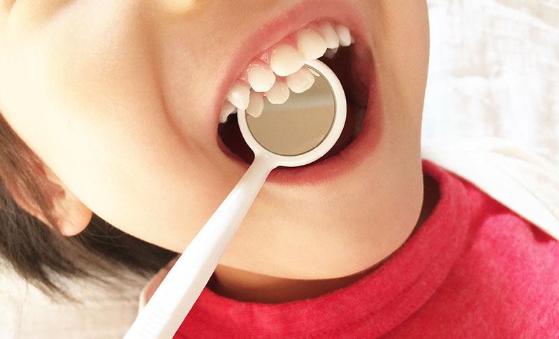 むし歯-あしたばデンタルクリニック公式サイト