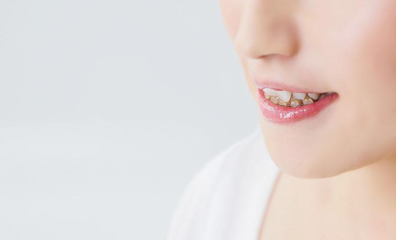 矯正歯科-あしたばデンタルクリニック公式サイト