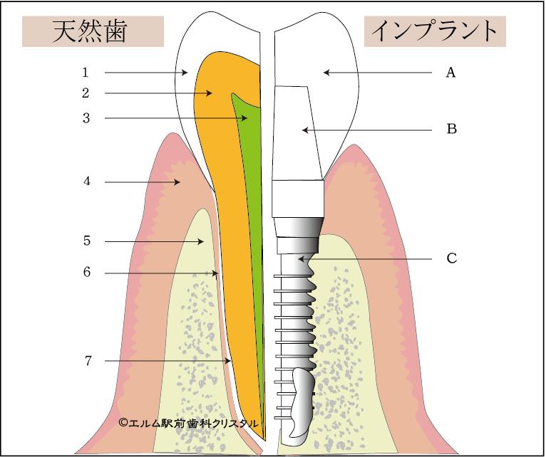 インプラントと天然歯の構造