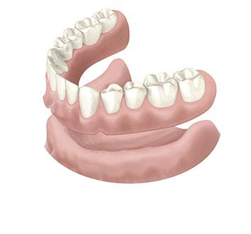 入れ歯の事例